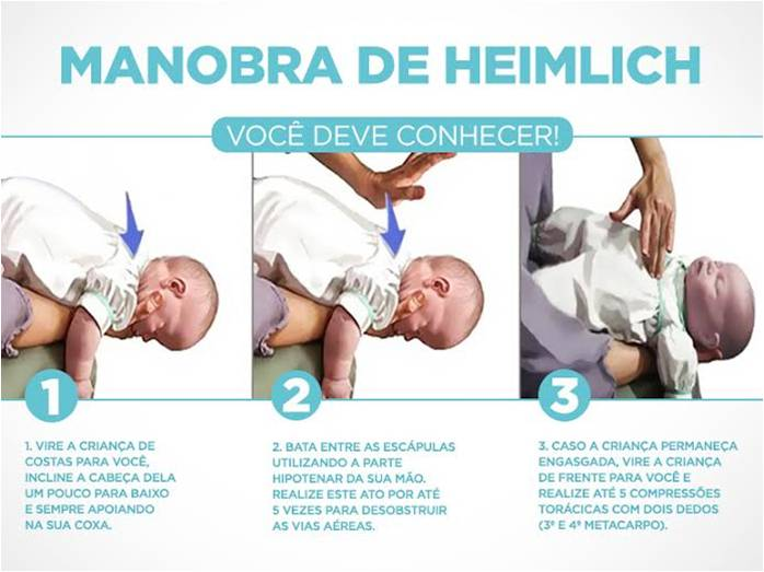 manobra heimlich