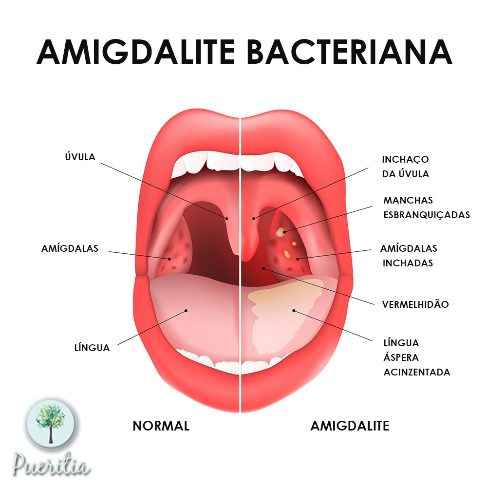 amigdalites